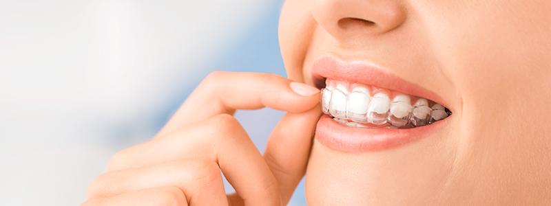 Orthodontie Saintes